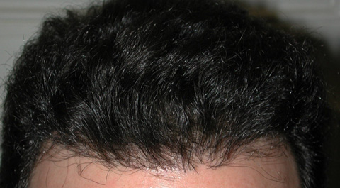 ROBOTIC NO TOUCH Hair Transplant