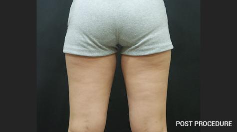 Thigh Post Procedure